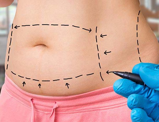 Abdominoplasty in Tehran